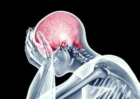 אירוע מוחי